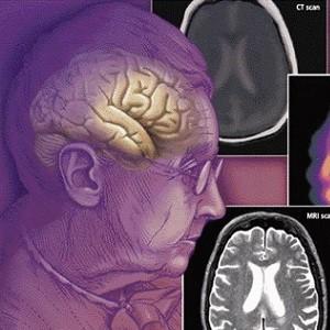 Деменция - особенности