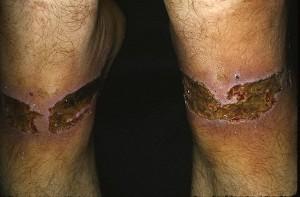 Лечение патомимии
